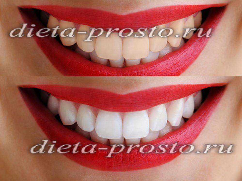 Как отбеливают зубы в стоматологии обзор методов