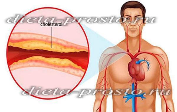 печенье при повышенном холестерине