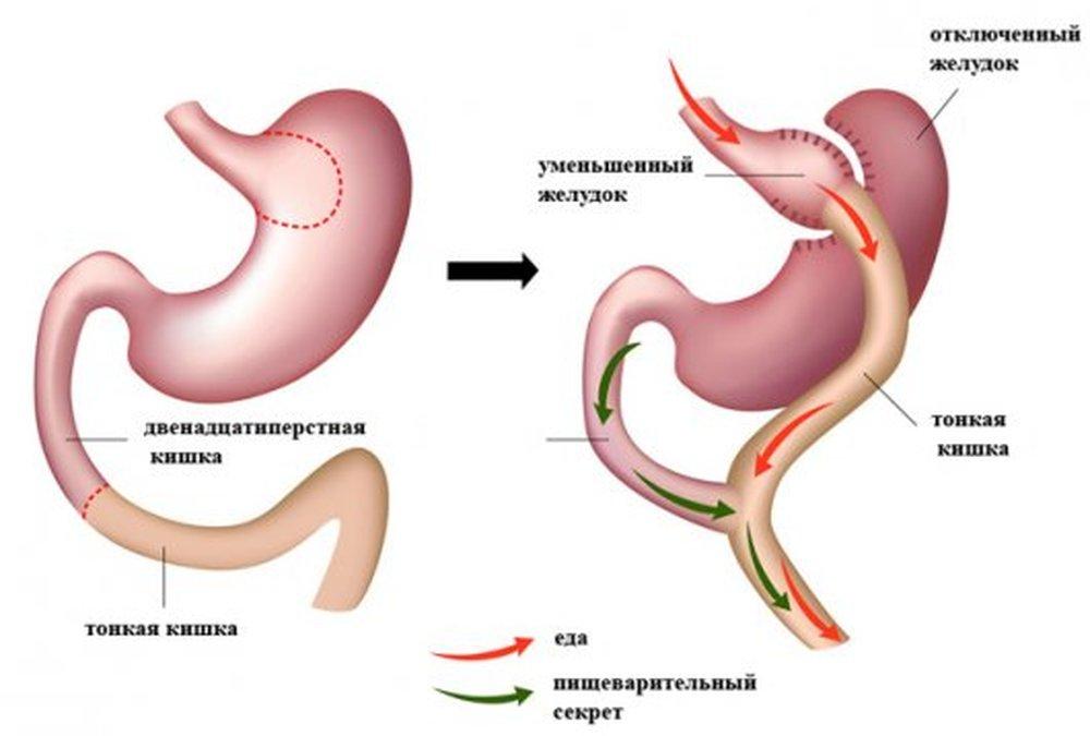 Уменьшить желудок домашних условиях